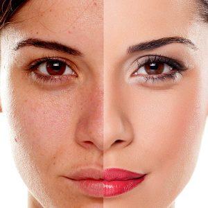 Czasami potrzebny jest mocny, kryjący makijaż - kamuflaż. Tego typu make-up maskuje większe niedoskonałości - ślady po trądziku, przebarwienia, naczynka, a nawet blizny.